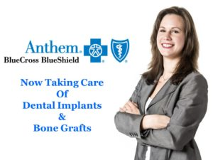 Anthem BlueCross BlueShield Now Taking Care Of Dental Implants & Bone Grafts Cost