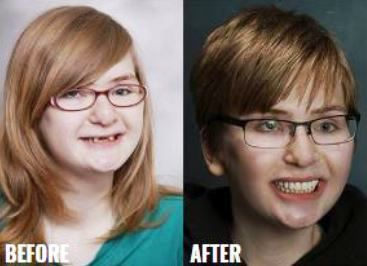 Before & After-12