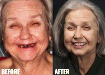 Before & After-13