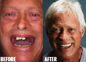 Before & After-9