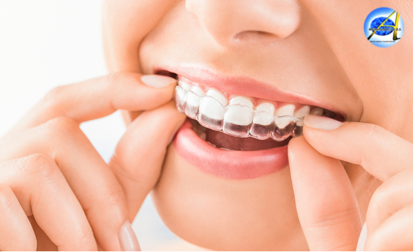Invisalign – Process | Advantages | Care