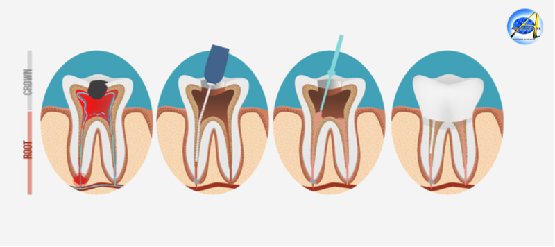 Root Canal Treatment – Advantages | Steps | Maintain