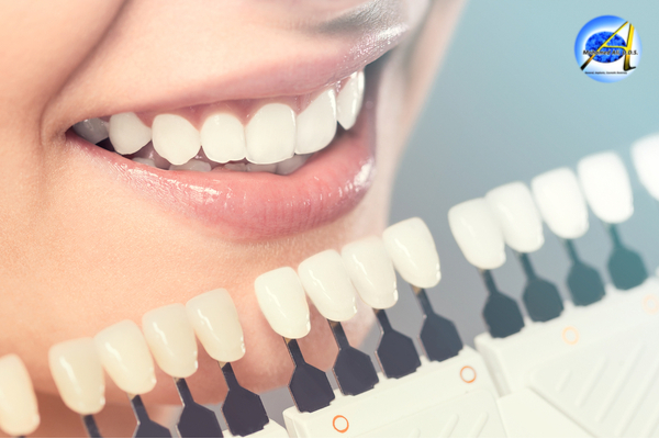 Cosmetic dentistry – Types
