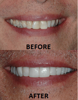 Porcelain Veneers Before After