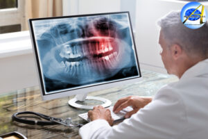 Digital X-rays – Different Types | Advantages | Uses | Safety | Frequency