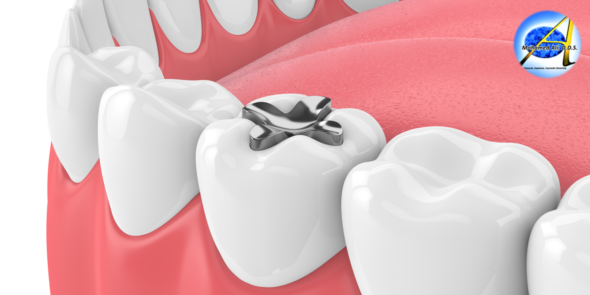 Dental Fillings – Types | Need | Process | Care