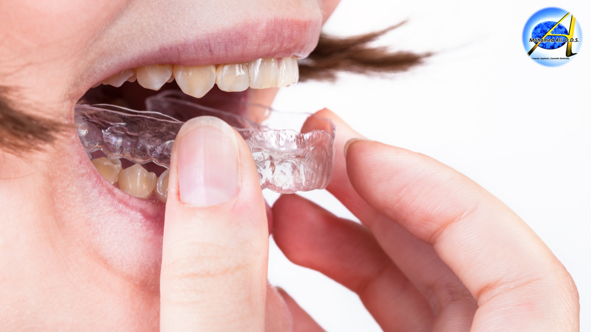 Mouthguards – Types | Protection