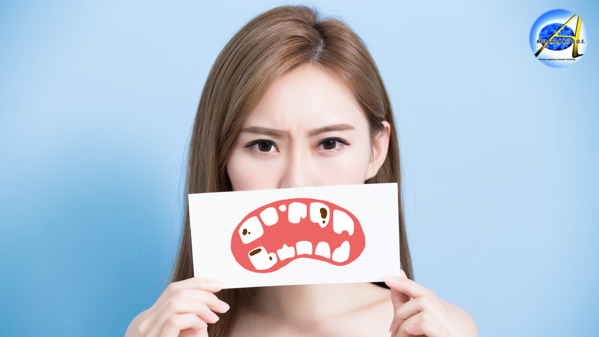 Tooth Decay – Symptoms | C